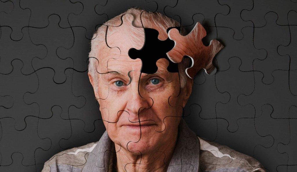 Альцгеймер